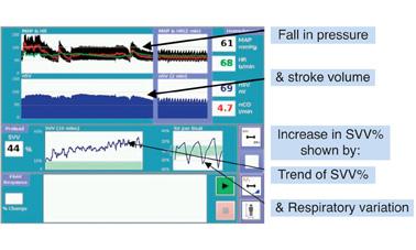 stroke_volume