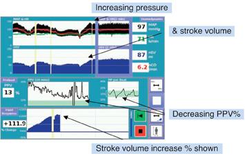 stroke_volume2