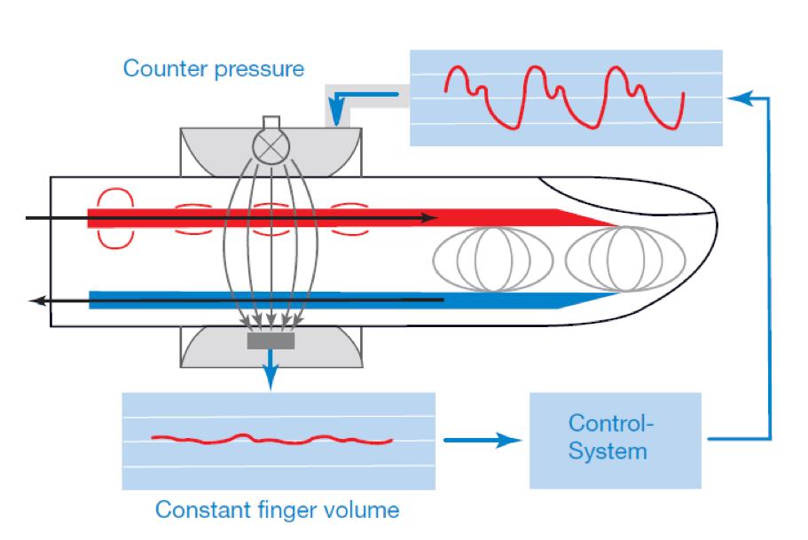 continuous non-invasive pressure, CNAP