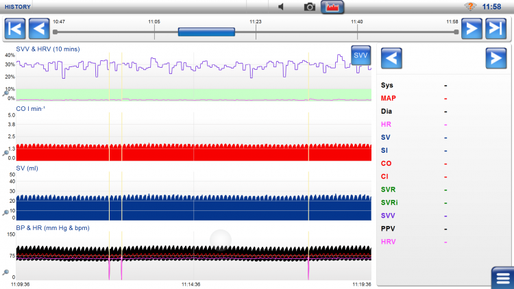 LiDCOrapid, hemodynamic values, hemodynamic events, history screen