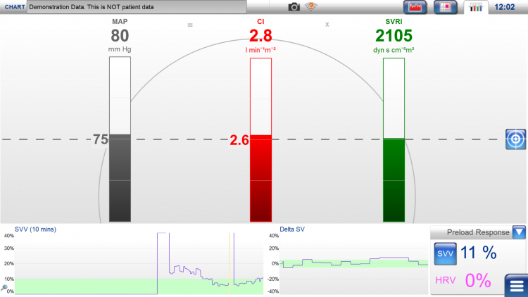 LiDCOplus, physiology screen, physiology targets, event response