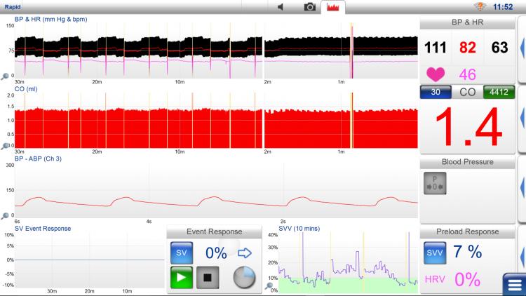 LiDCOrapid, trend screen,