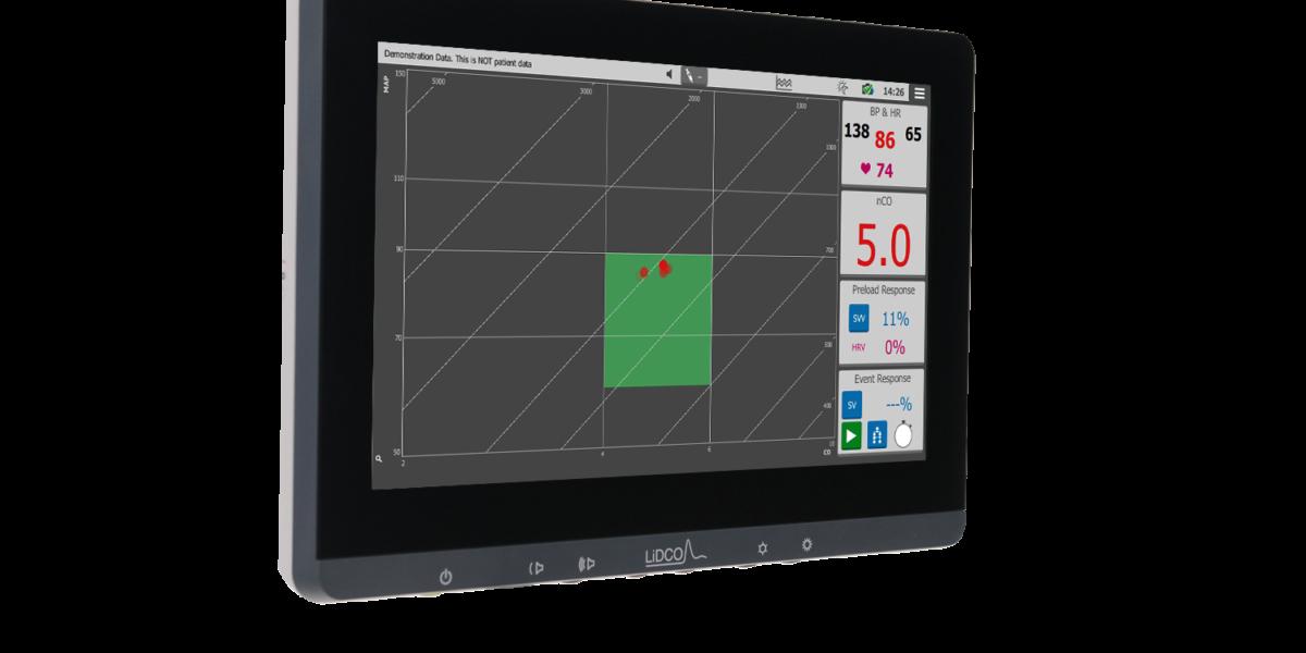 Hemodynamic monitor night mode graph image