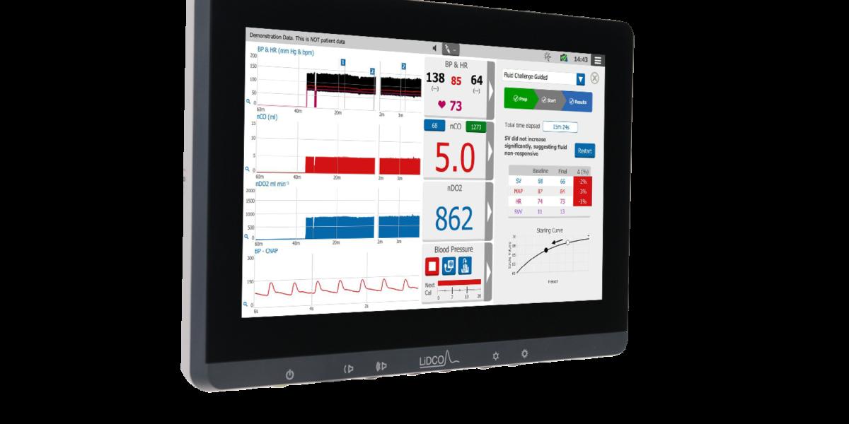 Guided protocols hemodynamic monitor image