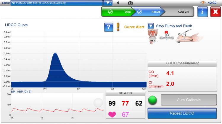 LiDCOplus, lithium dilution calibration, LiDCO curve, autocalibration, stop pump and flush, curve alert