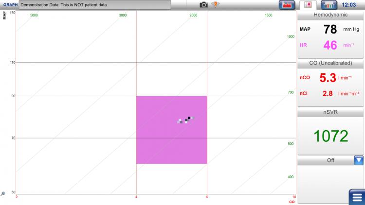 LiDCOplus, target screen, hemodynamic parameters, GDFT